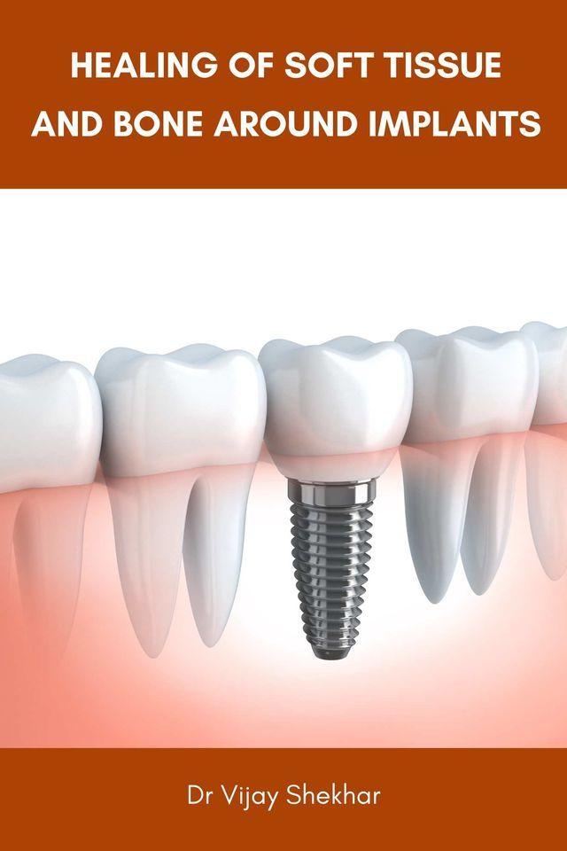 Healing of Soft Tissue and Bone Around Implants