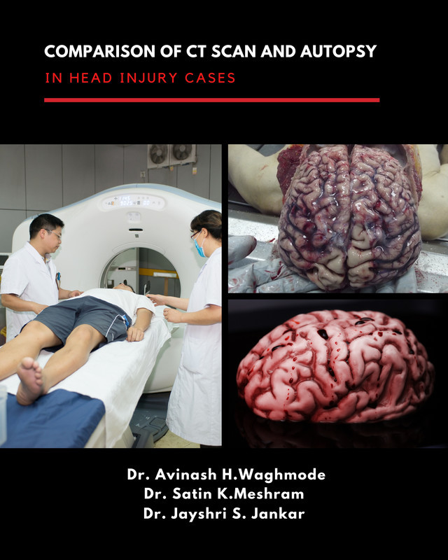 Comparison of CT scan and Autopsy in Head Injury cases - Front Cover