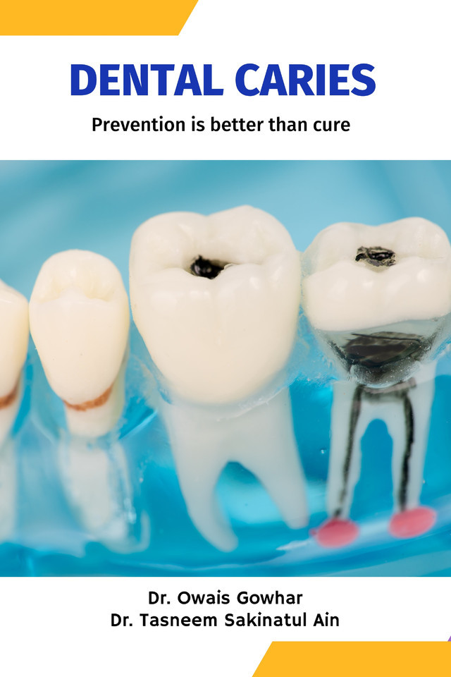 Dental Caries - Prevention is better than cure - Front Cover